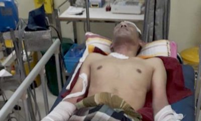 Korban saat di larikan ke rumah sakit. (ist)