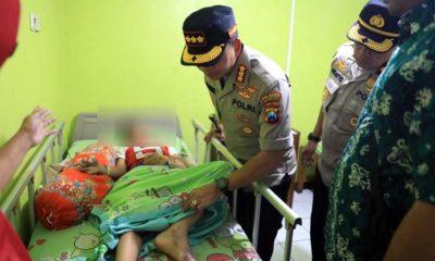 BESUK : Kapolresta Malang Kota Kombes Pol Dr Leonardus Harapantua Simarmata Permata S Sos SIK MH saat kunjungi korban. (ist)