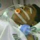 Sugianto saat masih jalani perawatan. (ist/facebook)